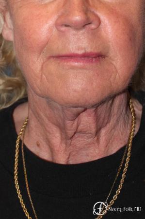 Denver Facial Rejuvenation Face lift, Fat Injections, and Laser Resurfacing 7131 - Before Image 3