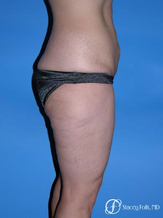 Denver Body Lift Belt lipectomy & liposuction 5264 - Before and After Image 3