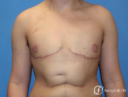 Denver Female to Male Top Surgery 5257 -  After Image 1