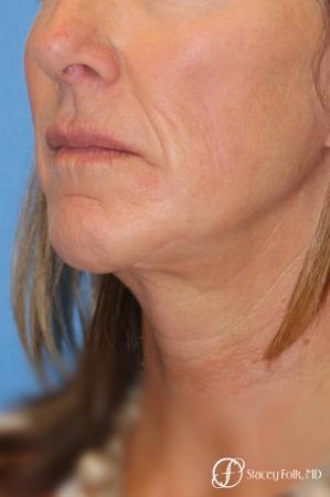 Denver Facial Rejuvenation Face lift, Fat Injections, and Laser Resurfacing 7132 -  After Image 2
