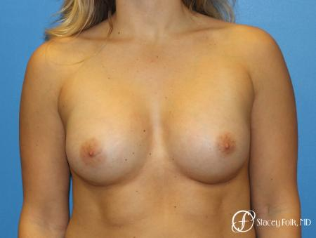 Denver Breast Augmentation with textured Sientra Anatomic Implants 9126 -  After Image 1