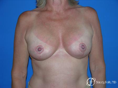 Denver Breast Lift and Augmentation 4557 -  After Image 1
