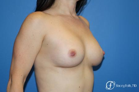 Breast augmentation with Natrelle Inspira breast implants -  After Image 2