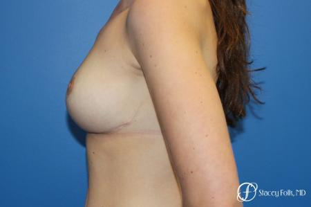 Denver Breast Lift - Mastopexy 10021 -  After Image 3
