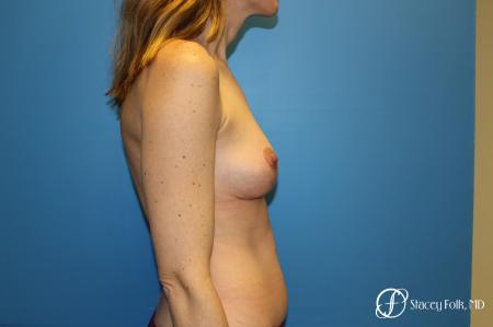 Fat Transfer Breast Lift: Patient 1 - After Image 2