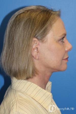 Facial Rejuvenation: Patient 1 - After Image 3