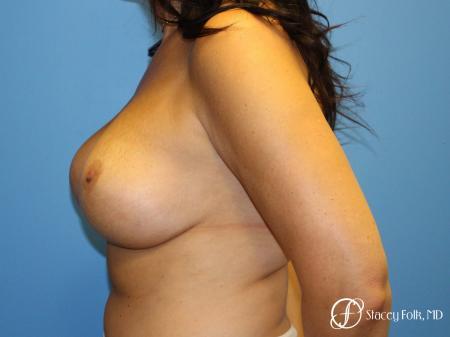 Denver Breast Revision 10094 -  After Image 4
