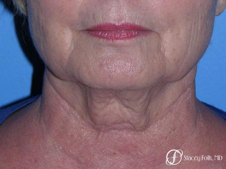 Denver Facial Rejuvenation Face Lift, Fat Injections, and Laser Resurfacing 7120 - Before and After Image 3