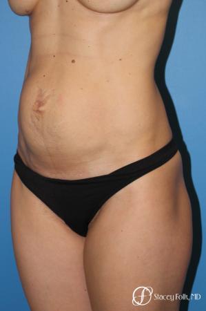Denver Tummy Tuck (Abdominoplasty) 11239 - Before Image 2