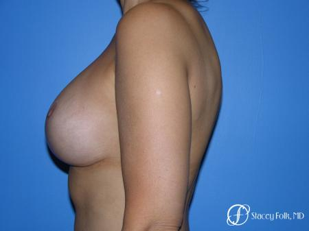 Denver Breast Revision 10094 - Before Image 4