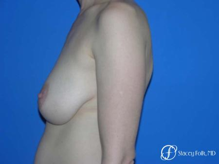 Denver Breast Lift - Mastopexy 7983 - Before and After Image 3