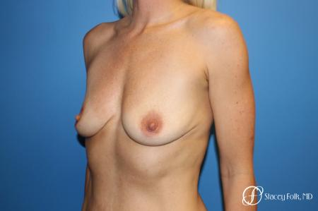 Breast augmentation with breast lift (Mastopexy) - Before Image 2