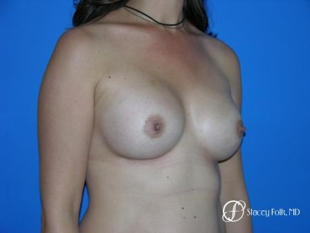 Denver Breast Augmentation 29 -  After Image 2