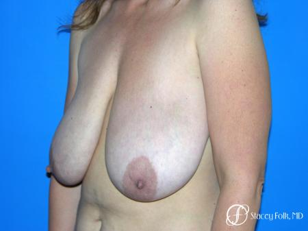 Denver Breast Reduction Mastopexy 5455 - Before Image 2