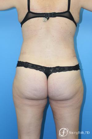 Tummy Tuck (Abdominoplasty) and Liposuction -  After Image 2