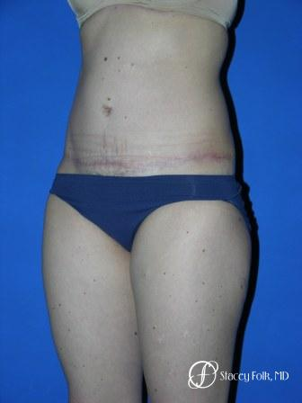 Denver Tummy Tuck 35 -  After Image 2