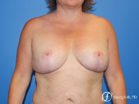 Breast Revision - Removal of Implant, Fat Transfer, Breast Lift (Mastopexy) - After Image