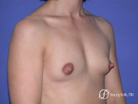 Denver Breast Augmentation 32 - Before Image 2