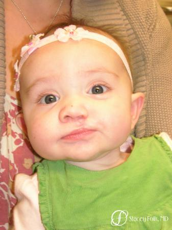 Denver Cleft Lip and Palate Repair 4776 - After Image