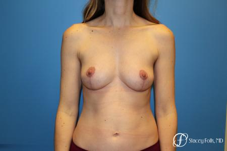 Fat Transfer Breast Lift: Patient 1 - After Image