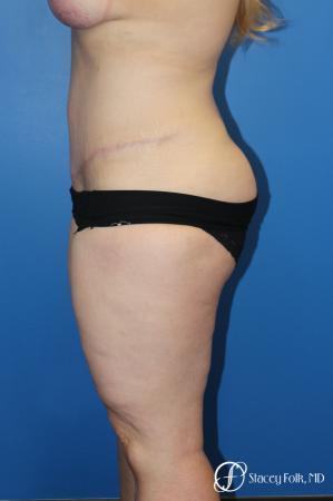 Tummy Tuck (Abdominoplasty) -  After Image 3