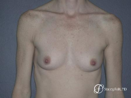 Denver Breast Augmentation 12 - Before Image 1