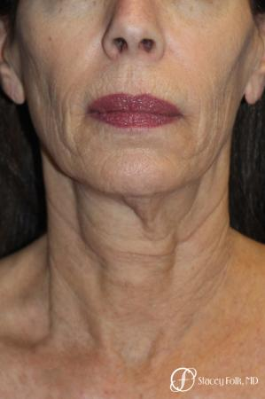 Facelift, Fat Transfer, Laser - Before and After Image 2