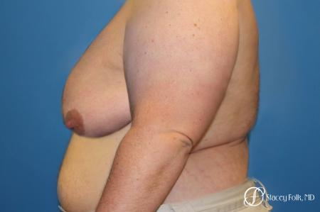 Denver Female to male top surgery 5258 - Before and After Image 2