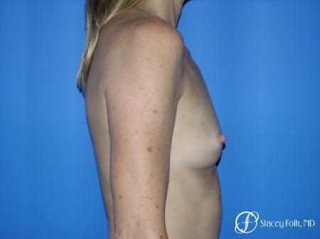 Denver Breast Augmentation 3633 - Before and After Image 3