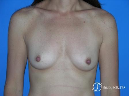 Denver Breast Augmentation 10 - Before Image 1