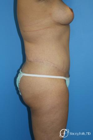 Denver Mommy makeover, breast reduction, abdominoplasty and liposuction 5353 -  After Image 3
