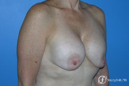 Denver Breast Revision 7990 - Before Image 2