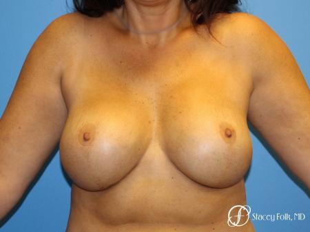 Denver Breast Revision 10094 -  After Image 1