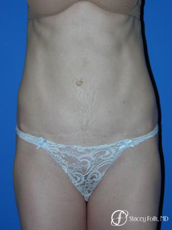 Denver Tummy Tuck Abdominoplasty 5456 -  After Image 1