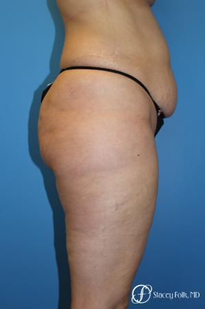 Tummy Tuck - Abdominoplasty - Before and After Image 3