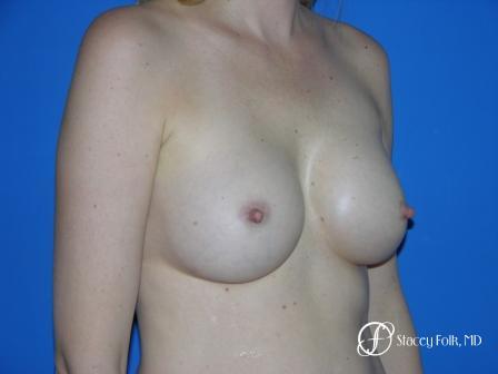 Denver Breast Augmentation 9 -  After Image 2