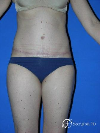 Denver Tummy Tuck 35 -  After Image 1