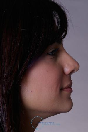 Rhinoplasty: Patient 32 - After Image 3