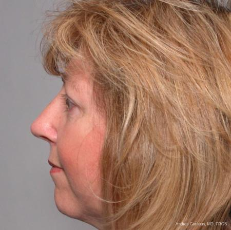 Rhinoplasty: Patient 36 - After Image 3