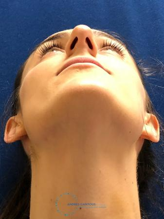 Rhinoplasty: Patient 7 - Before Image 2