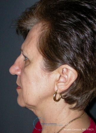 Rhinoplasty: Patient 98 - Before and After Image 6