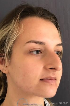Rhinoplasty: Patient 90 - Before Image 3