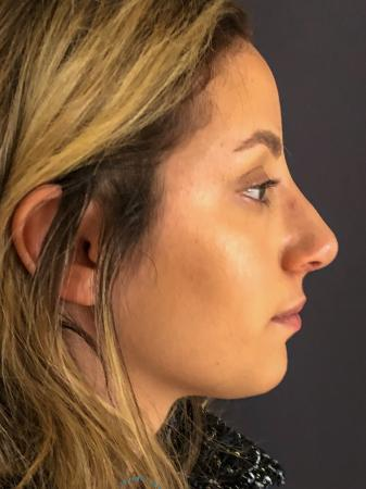 Rhinoplasty: Patient 74 - After Image 5