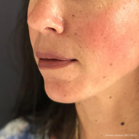 Chin Augmentation: Patient 7 - After Image