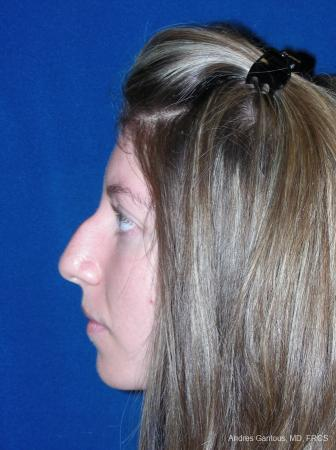 Rhinoplasty: Patient 52 - Before Image 3