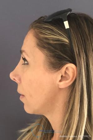 Revision Rhinoplasty: Patient 3 - Before and After Image 6