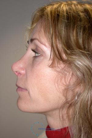 Revision Rhinoplasty: Patient 19 - After Image 4