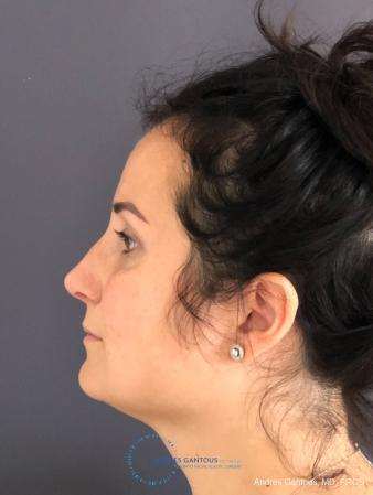 Rhinoplasty: Patient 3 - After Image 6