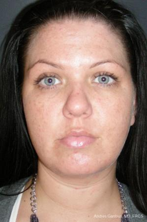 Facelift & Neck Lift: Patient 11 - After Image 1