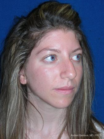 Rhinoplasty: Patient 52 - Before Image 4